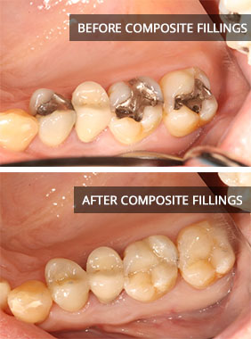 composite-fillings-before-after Cosmetic Fillings & Inlays