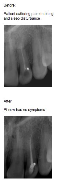 endodontics Endodontics