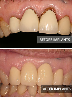 implants-before-and-after Dental Implants