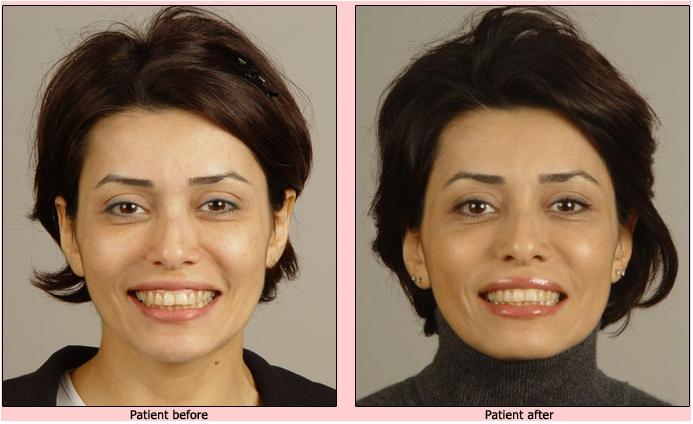 oralift-before-and-after-case-1 Oralift: Non Surgical Face Lift