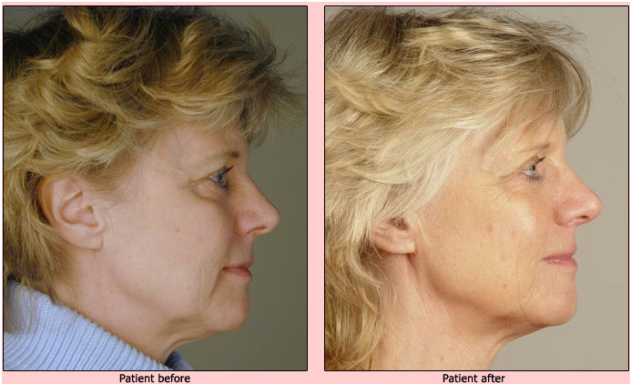 oralift-before-and-after-case-2 Oralift: Non Surgical Face Lift