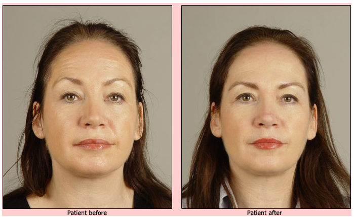 oralift-before-and-after-case-3 Oralift: Non Surgical Face Lift
