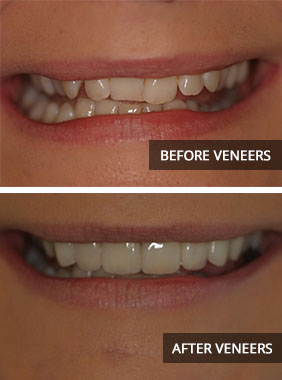 veneers-before-and-after Cosmetic Veneers